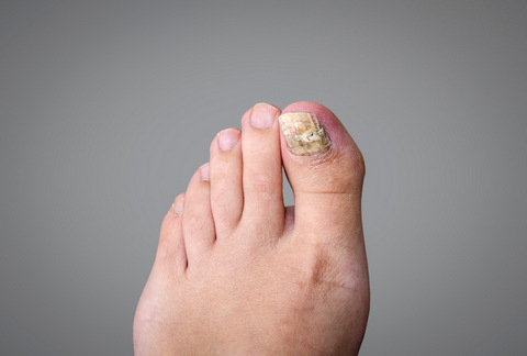 Mobile Foot Clinic covering Mar Menor and Costa Cálida