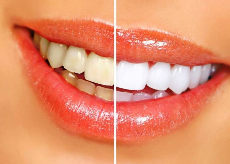 Cosmetic Teeth Whitening, Porcelain veneers, crowns and dental implants at CDC DENTAL SERVICE Cartagena .