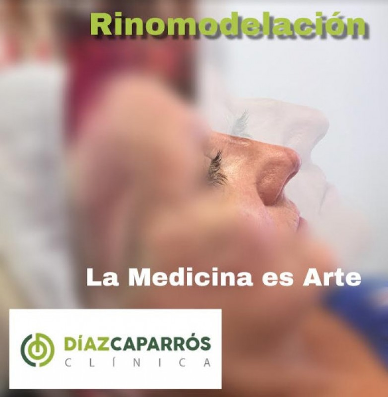 Simple rhino-modelling for a straighter nose at Clínica Díaz Caparrós in Cartagena